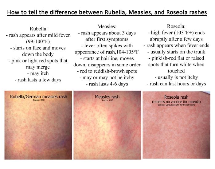 rash differences 11x14